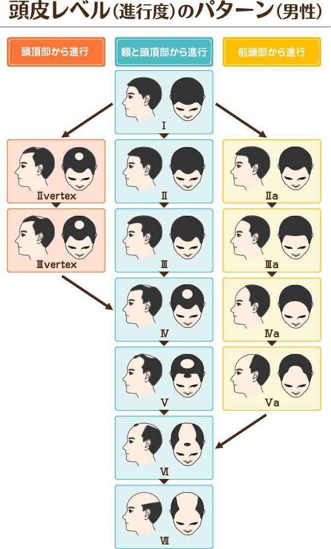 男性の頭皮レベルの進行パターン