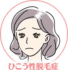 ひこう性脱毛症